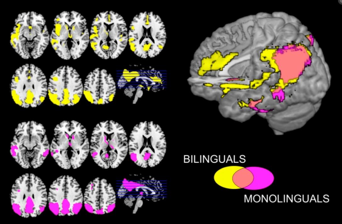 I cervelli bilingui combattono meglio i sintomi dell'Alzheimer