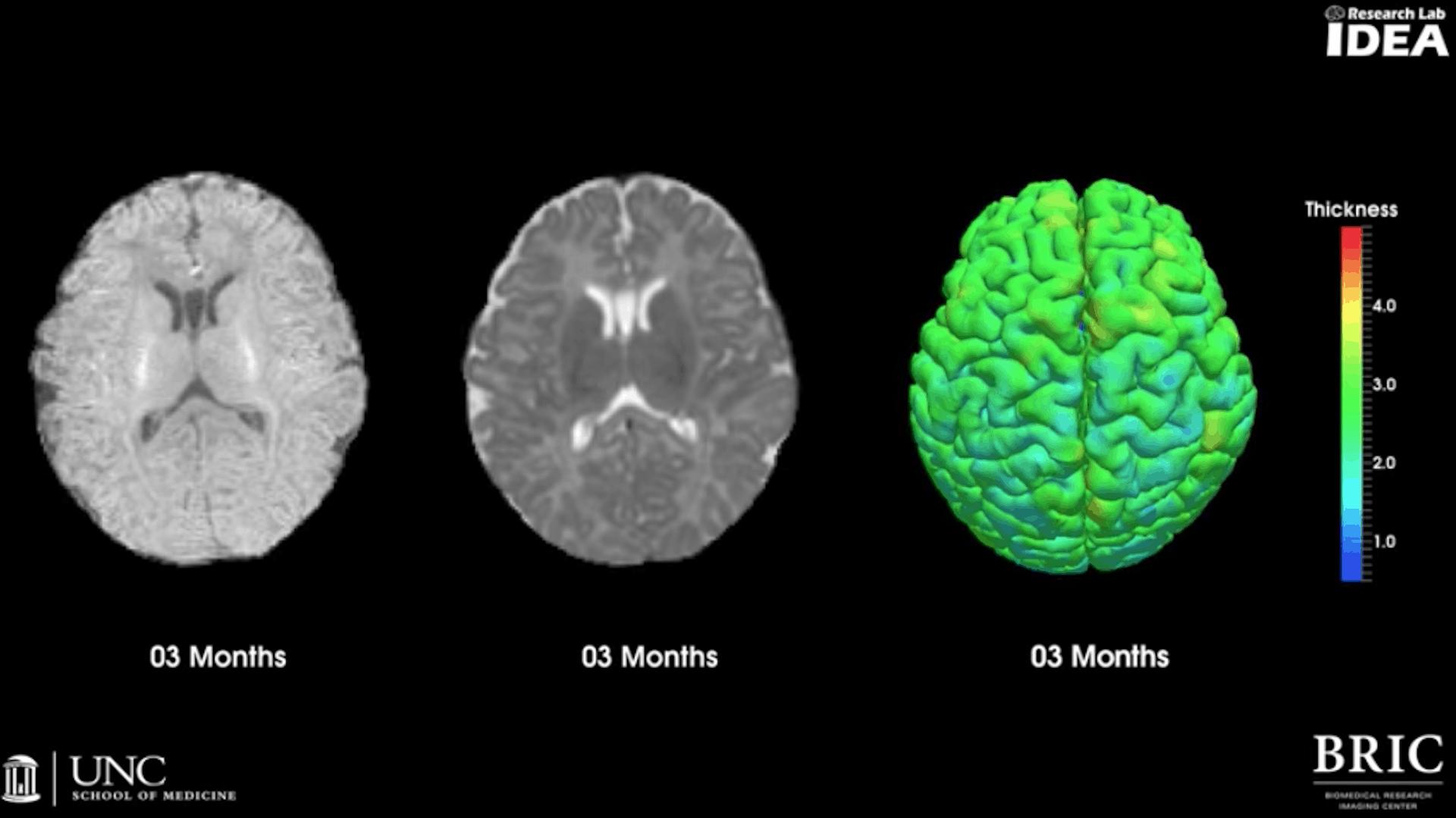 MRI e lo sviluppo del cervello nei bambini