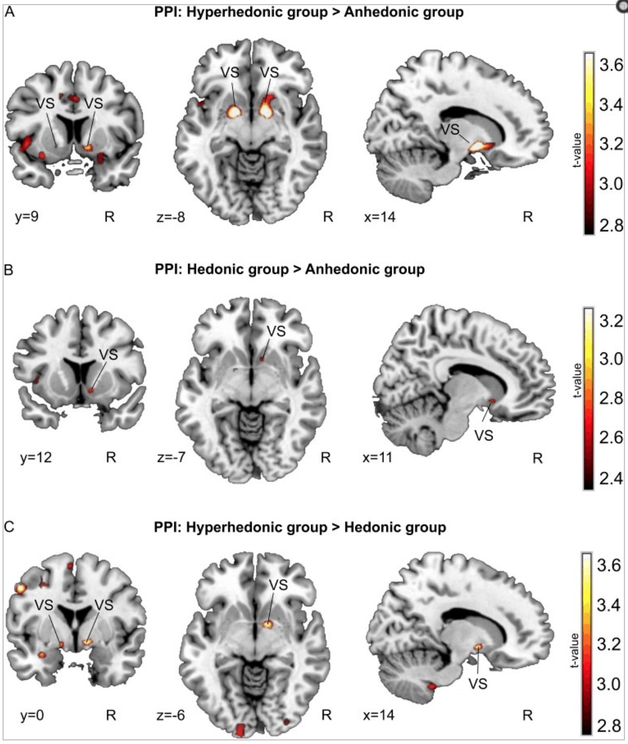 L'amore per la musica e i gradi di connettività del cervello